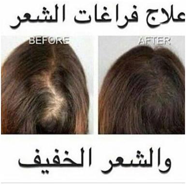 تجارب زيت الحشيش للشعر 0540428830 الأفضل للرجل والمرأة اهل السعودية Saudia10