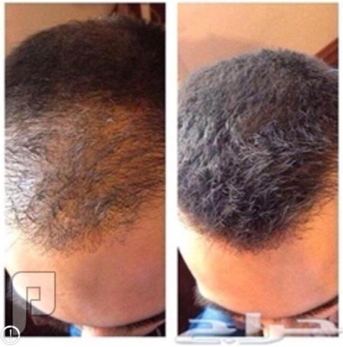 زيت الحشيش لإنبات الشعر