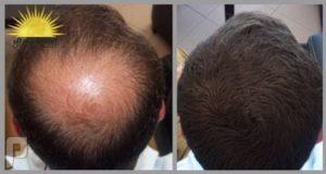 تجارب زيت الحشيش لإنبات الشعر