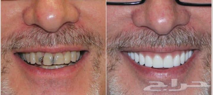 تلبيس الاسنان في مكة