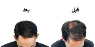 زيوت لتكثيف الشعر