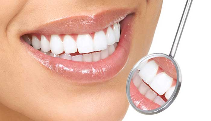 مراكز اسنان في جدة