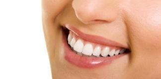 اسنان هوليود