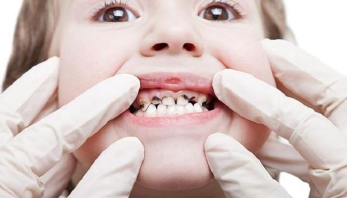 اسنان الأطفال في مدينة المنورة