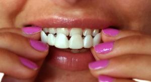 عدسات الاسنان في جدة