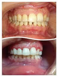 تنظيف الاسنان