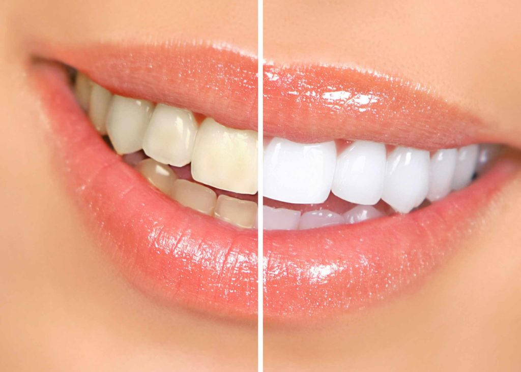 تبييض الاسنان بالدمام