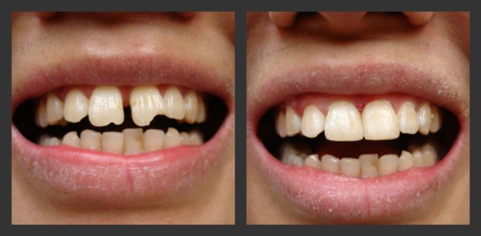 تجميل الاسنان في الدمام