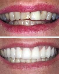 تلبيس الاسنان بالخبر