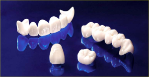 تلبيس الاسنان في خميس مشيط