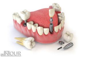 تركيب الاسنان في المدينة المنورة