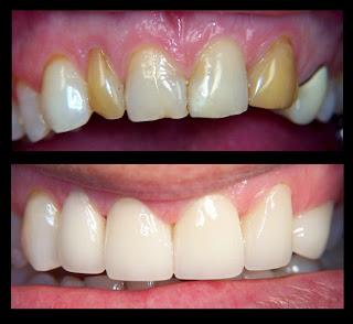 تركيب الاسنان في أبها