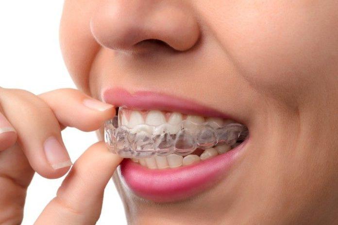 تركيب الاسنان في جدة