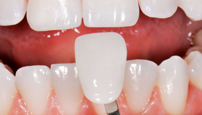 تركيب الاسنان
