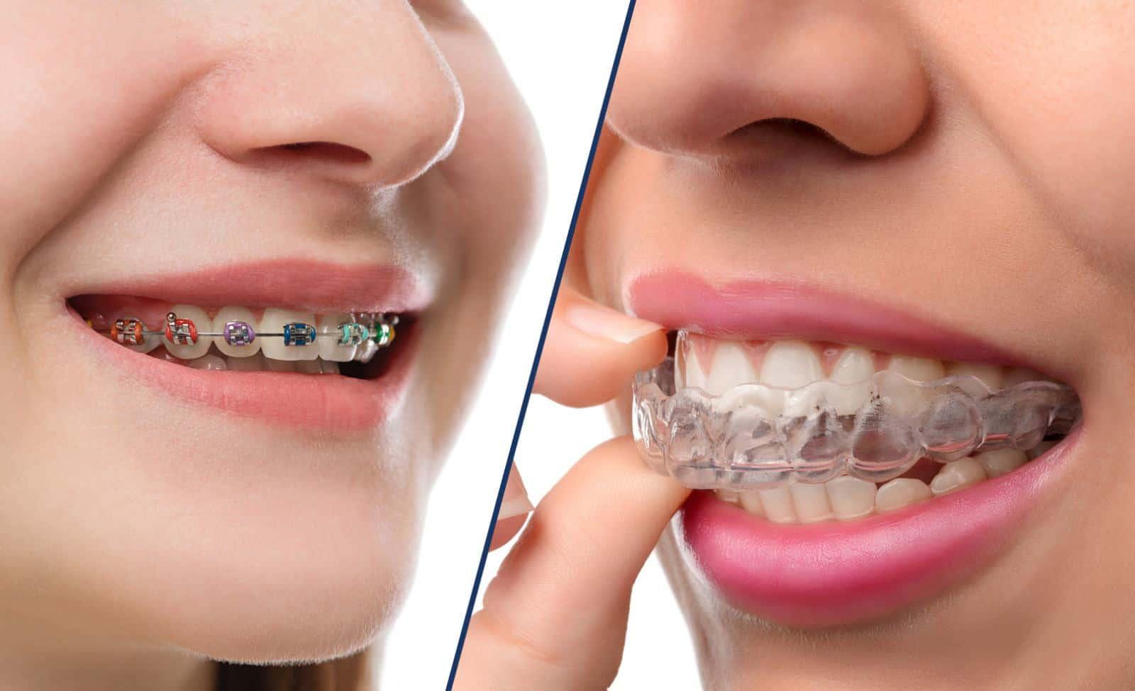 أسعار تقويم الأسنان 2021 11 15
