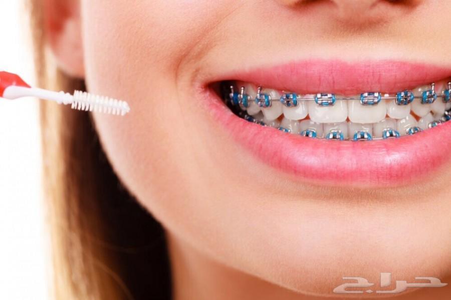 أفضل 6 مستشفيات لتركيب تقويم الاسنان في أبها أنت تستحق الأفضل I أهل السعودية