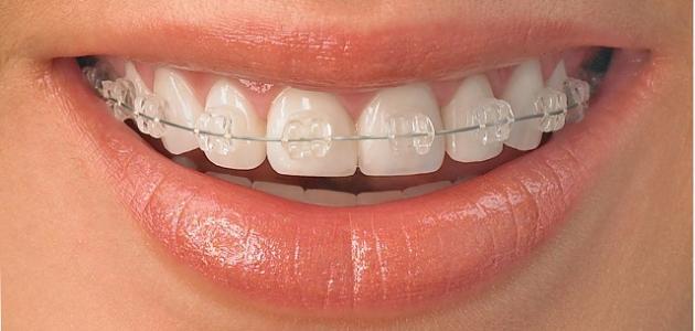 تقويم الاسنان في الاحساء