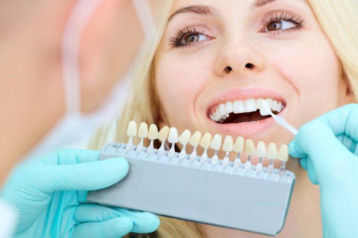 تلبيس الاسنان في الدمام