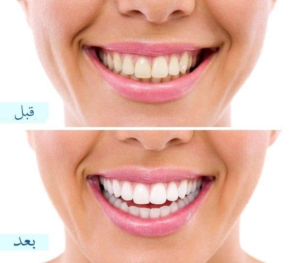 تنظيف الاسنان في أبها