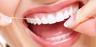 تنظيف الاسنان في خميس مشيط