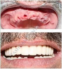 زراعة الاسنان بخميس مشيط
