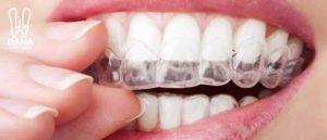 تقويم الاسنان في الطائف