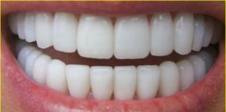 زراعة الاسنان بالاحساء