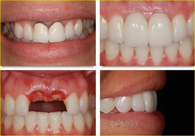عملية زراعة الأسنان الفوائد و التكلفة و المخاطر تجميلي