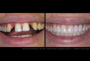 تجميل الاسنان بخميس مشيط