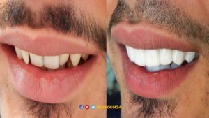 عدسات الاسنان في خميس مشيط
