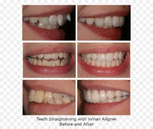 تقويم الاسنان في الخبر