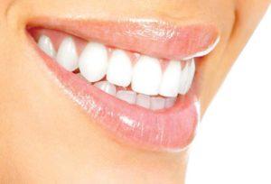 زراعة الاسنان في الدمام