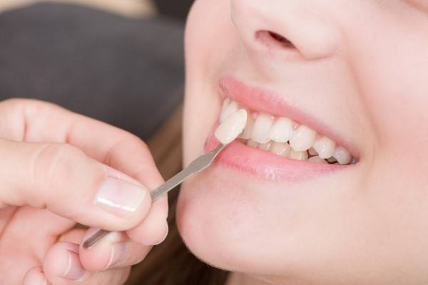 توظيف اقامة كثير سعر تنظيف الاسنان بجده Alterazioni Org