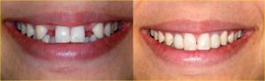 زراعة الاسنان بالطائف