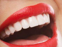عيادة اسنان في الدمام