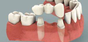 تلبيس الاسنان في أبها