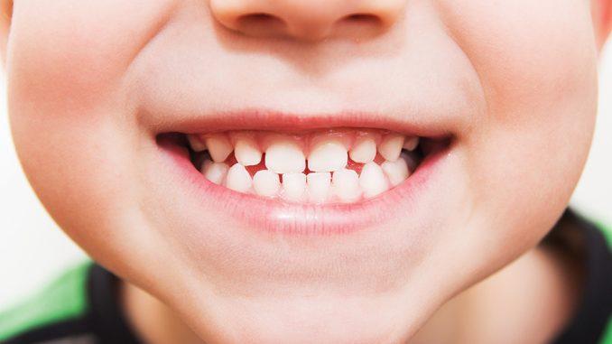 مراكز اسنان في المدينة المنورة