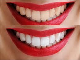 مستشفيات تبييض الاسنان