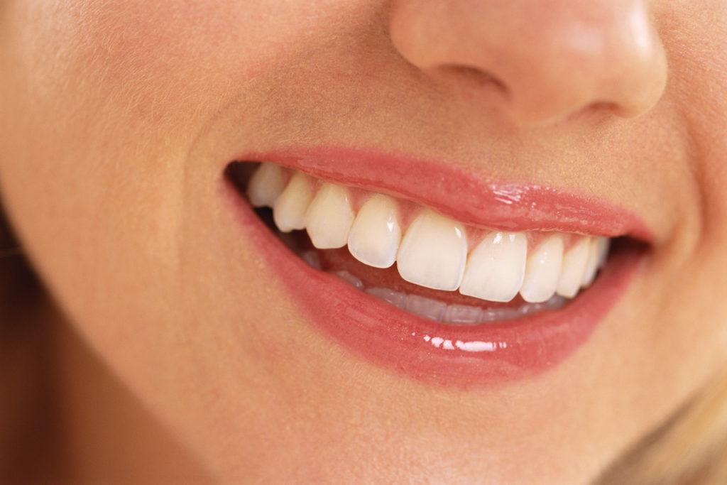 تبييض الاسنان في الخبر