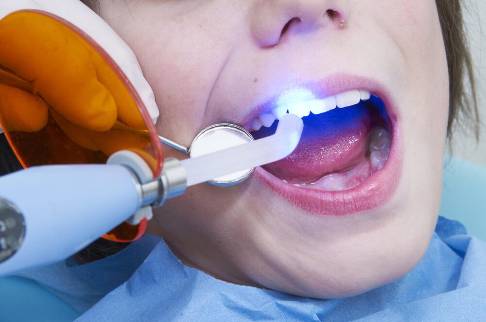 تجميل الاسنان بالمدينة المنورة