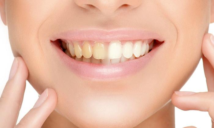 عيادة اسنان في الطائف