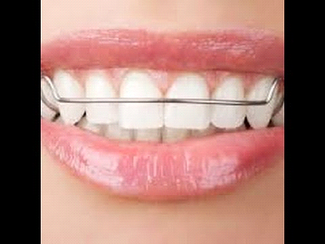 أدوات تنظيف تقويم الاسنان