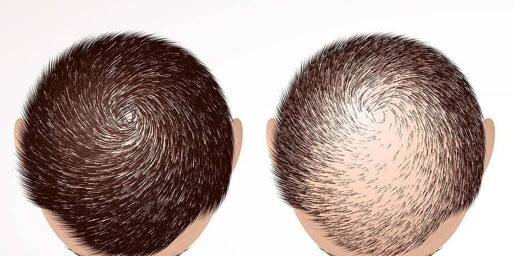 عيادة شعر جدة