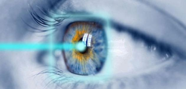 طبيب العيون