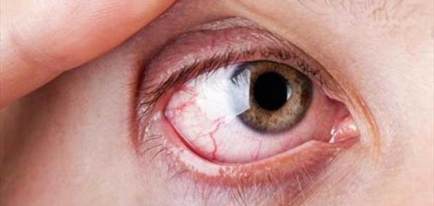مركز بطل لجراحات العين والليزر