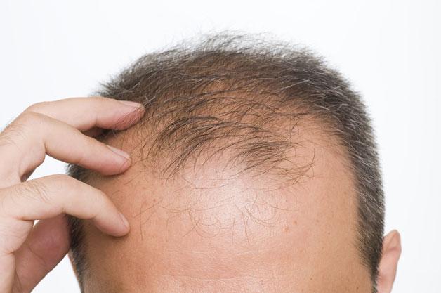 تقصف الشعر عند الرجال