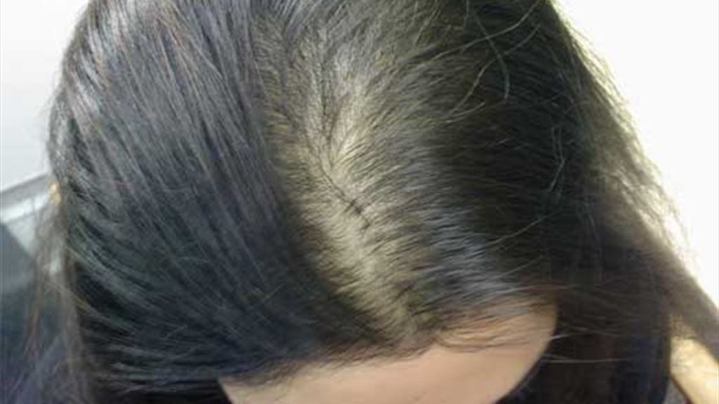 تقصف الشعر من المقدمة