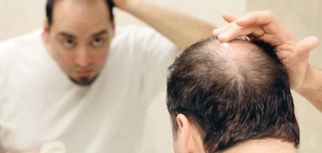 تقصف شعر الرجال