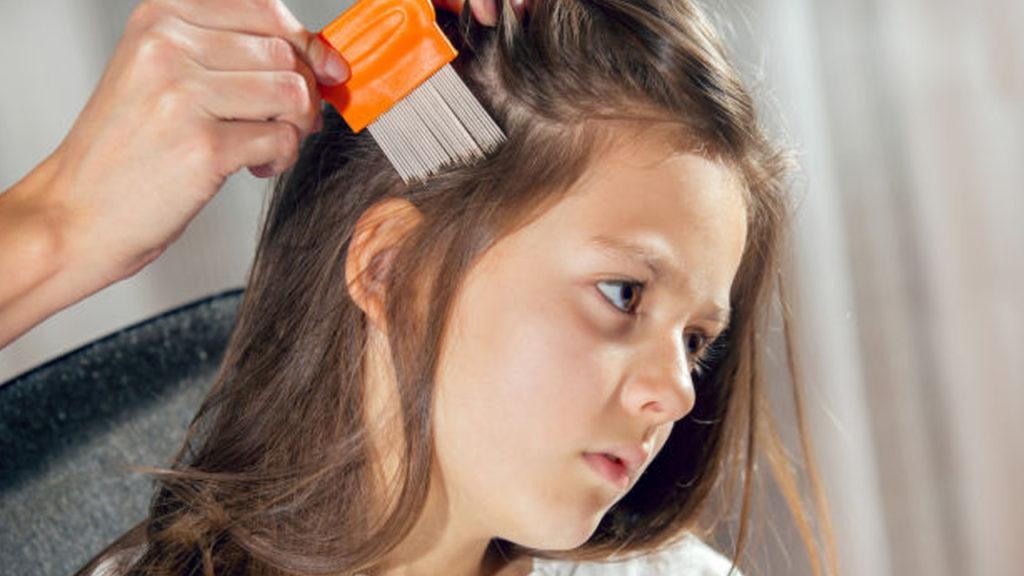 طرق علاج تقصف الشعر عند الاطفال