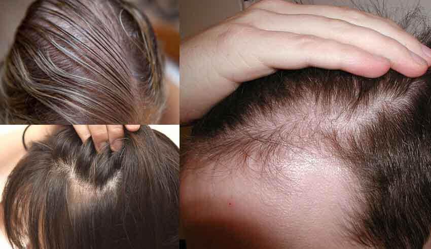 علاج الشعر المتقصف والمتساقط